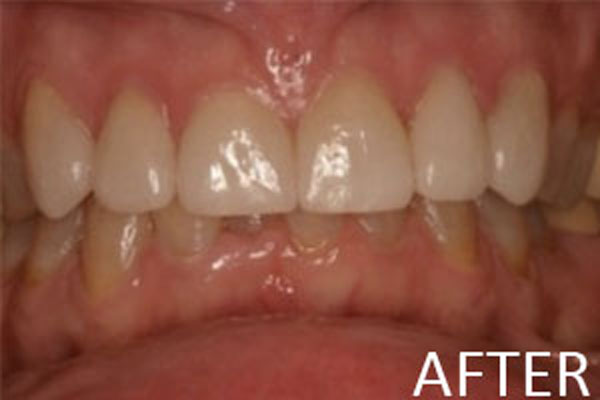 porcelain-veneers-after-b