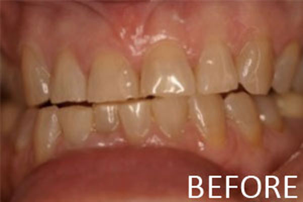 porcelain-veneers-before-b